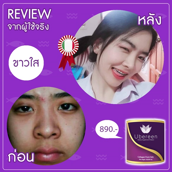 Review Ubereen-Collagen ผิวขาว